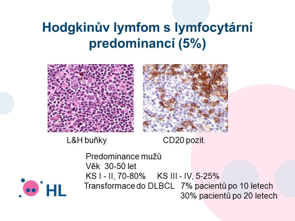 Hodgkinův lymfom s lymfocytární predominancí (5%) L&H buňky CD20 pozit.