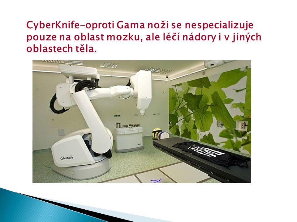 CyberKnife-oproti Gama noži se nespecializuje pouze na oblast mozku, ale léčí nádory i v jiných oblastech těla.
