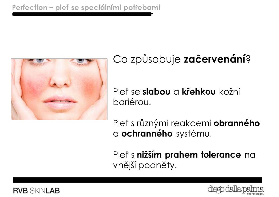 Lenitivo – pelli sensibili Perfection – skins with special needs Co způsobuje začervenání .