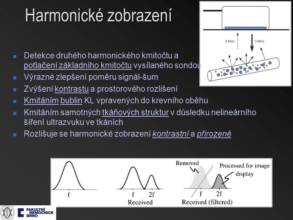 Detekce druhého harmonického kmitočtu a potlačení základního kmitočtu vysílaného sondou Výrazné zlepšení poměru signál-šum Zvýšení kontrastu a prostorového rozlišení Kmitáním bublin KL vpravených do krevního oběhu Kmitáním samotných tkáňových struktur v důsledku nelineárního šíření ultrazvuku ve tkáních Rozlišuje se harmonické zobrazení kontrastní a přirozené
