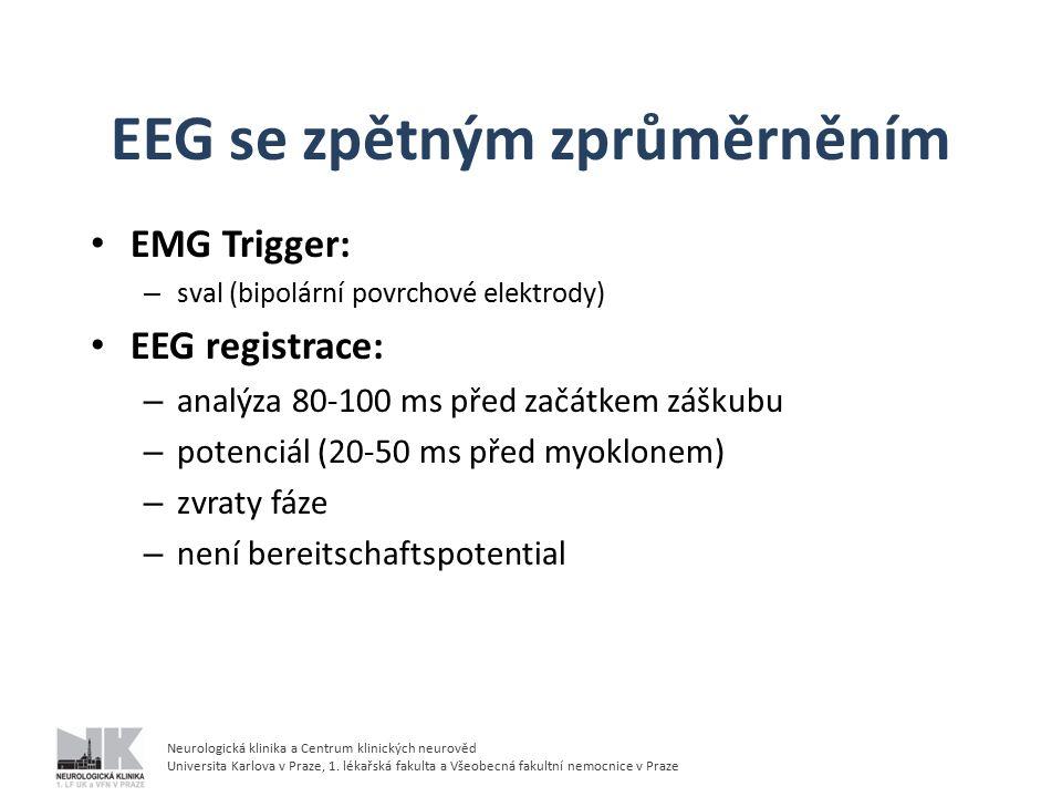 Neurologická klinika a Centrum klinických neurověd Universita Karlova v Praze, 1. lékařská fakulta a Všeobecná fakultní nemocnice v Praze EEG se zpětn