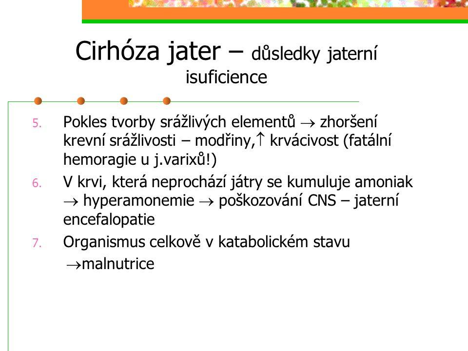 Cirhóza jater – důsledky jaterní isuficience 5. Pokles tvorby srážlivých elementů  zhoršení krevní srážlivosti – modřiny,  krvácivost (fatální hemor