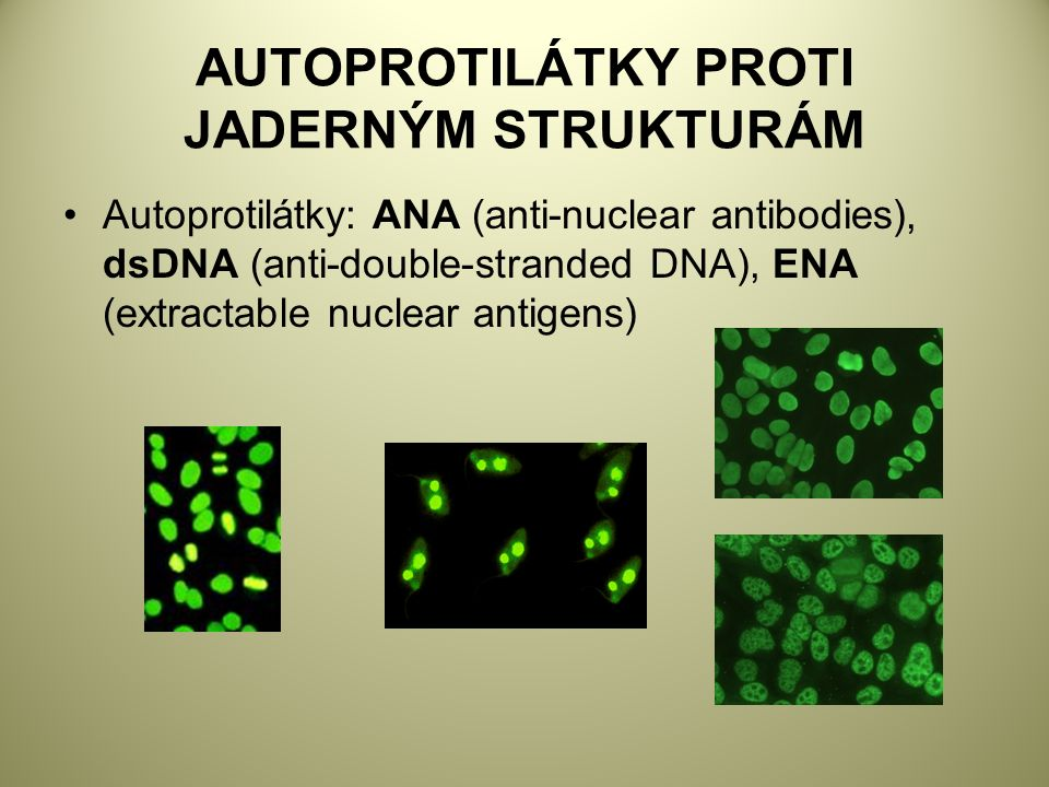 AUTOPROTILÁTKY PROTI JADERNÝM STRUKTURÁM Autoprotilátky: ANA (anti-nuclear antibodies), dsDNA (anti-double-stranded DNA), ENA (extractable nuclear antigens)