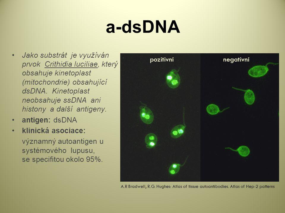 a-dsDNA Jako substrát je využíván prvok Crithidia luciliae, který obsahuje kinetoplast (mitochondrie) obsahující dsDNA.