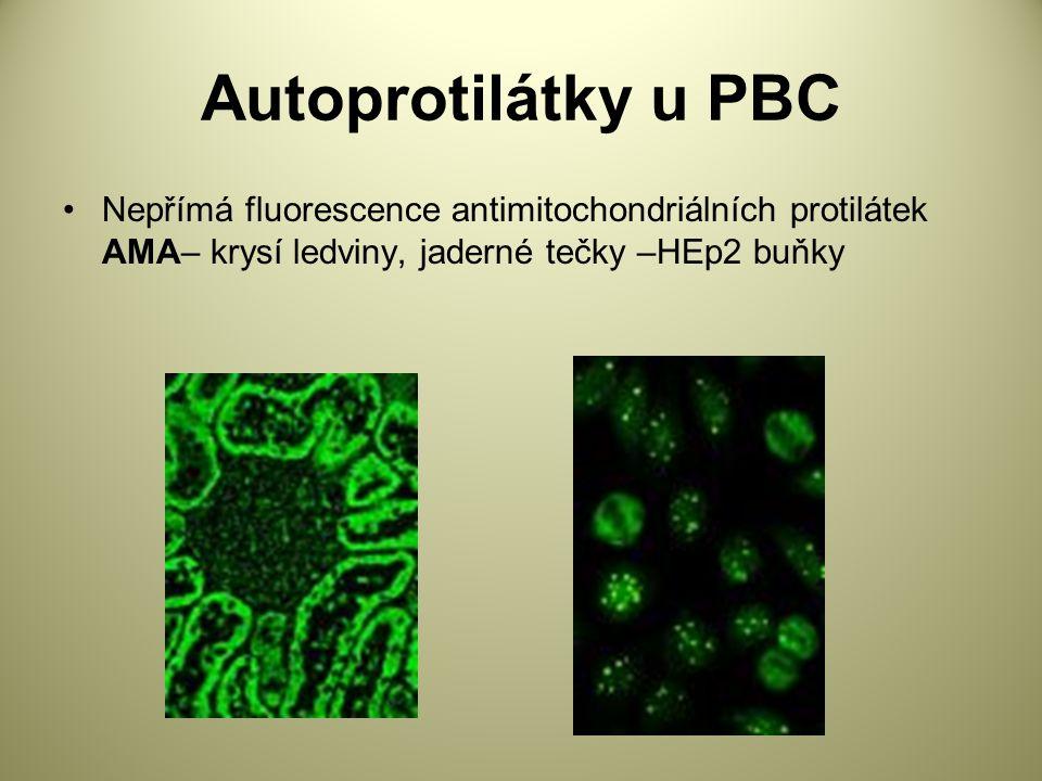 Autoprotilátky u PBC Nepřímá fluorescence antimitochondriálních protilátek AMA– krysí ledviny, jaderné tečky –HEp2 buňky