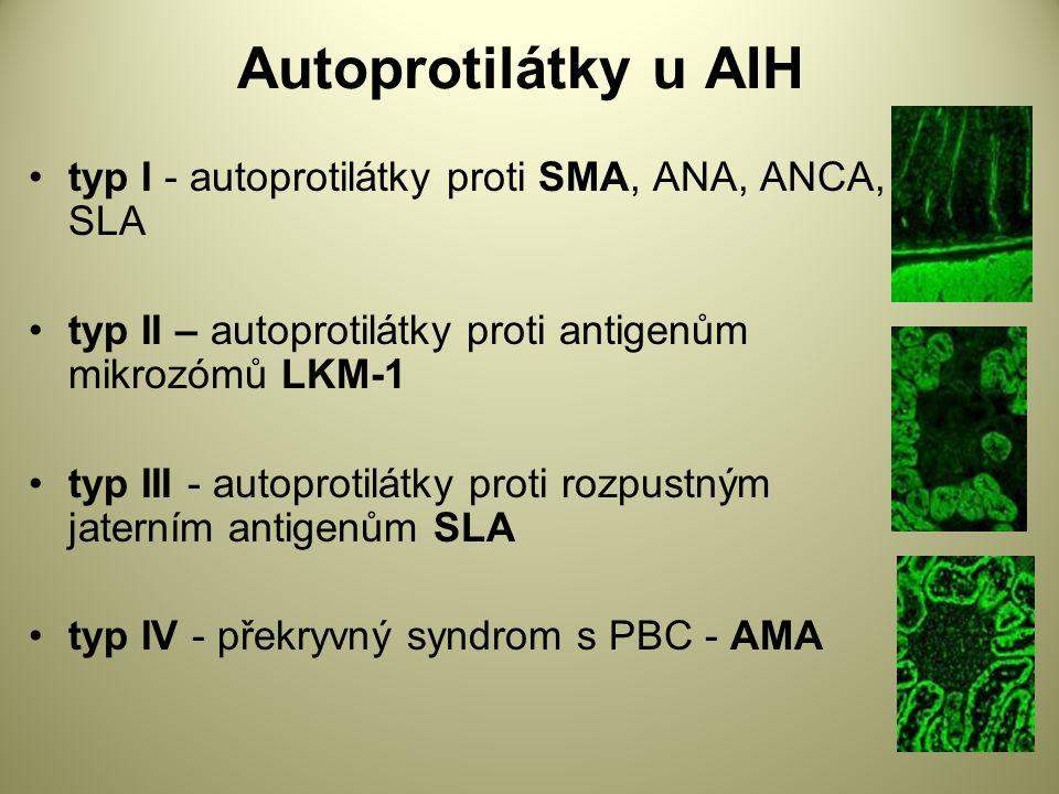 Autoprotilátky u AIH typ I - autoprotilátky proti SMA, ANA, ANCA, SLA typ II – autoprotilátky proti antigenům mikrozómů LKM-1 typ III - autoprotilátky proti rozpustným jaterním antigenům SLA typ IV - překryvný syndrom s PBC - AMA
