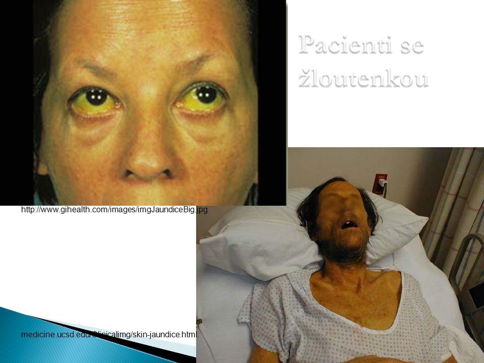 Pacienti se žloutenkou medicine.ucsd.edu/Clinicalimg/skin-jaundice.html.