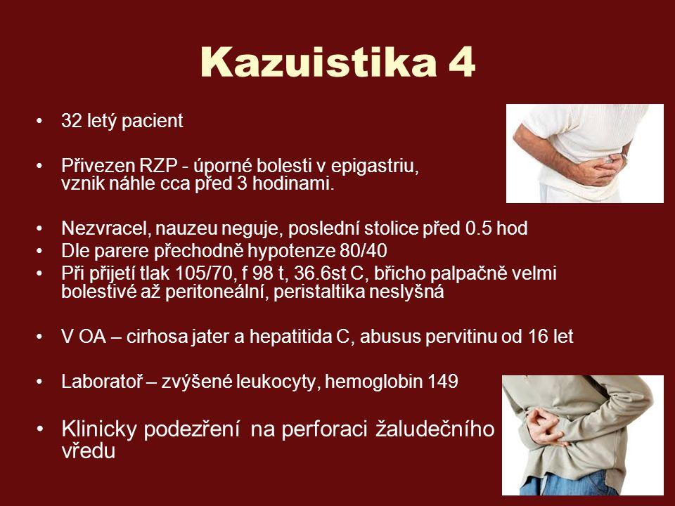 Kazuistika 4 32 letý pacient Přivezen RZP - úporné bolesti v epigastriu, vznik náhle cca před 3 hodinami.