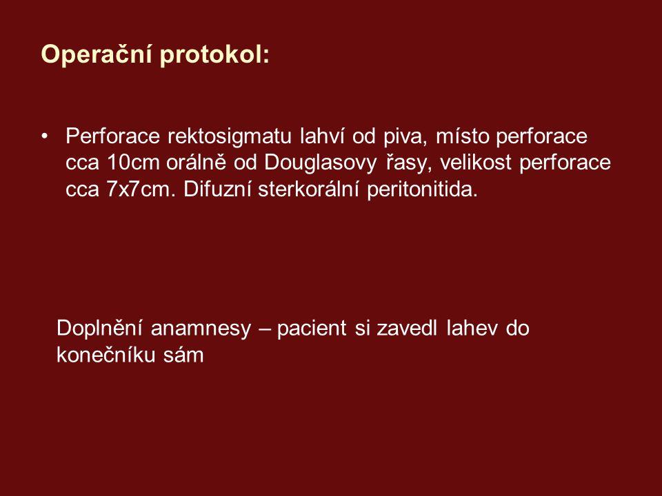 Operační protokol: Perforace rektosigmatu lahví od piva, místo perforace cca 10cm orálně od Douglasovy řasy, velikost perforace cca 7x7cm.