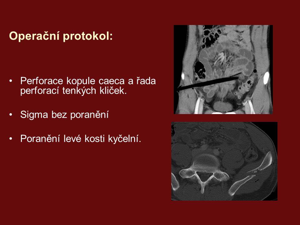 Operační protokol: Perforace kopule caeca a řada perforací tenkých kliček.