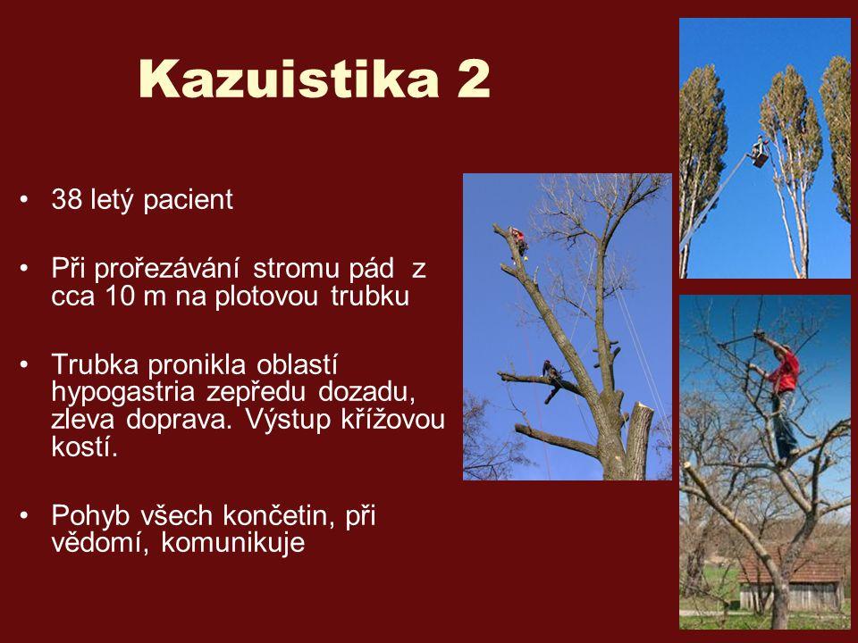 Kazuistika 2 38 letý pacient Při prořezávání stromu pád z cca 10 m na plotovou trubku Trubka pronikla oblastí hypogastria zepředu dozadu, zleva doprava.