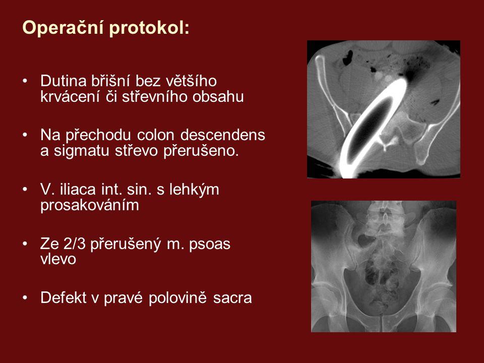 Operační protokol: Dutina břišní bez většího krvácení či střevního obsahu Na přechodu colon descendens a sigmatu střevo přerušeno.