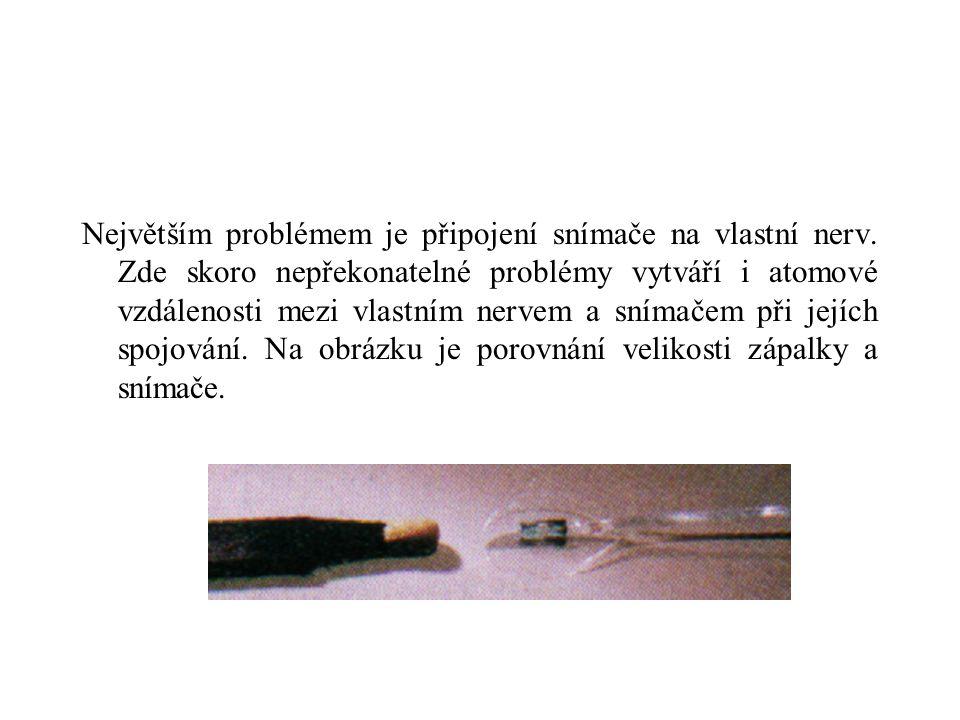 Největším problémem je připojení snímače na vlastní nerv.