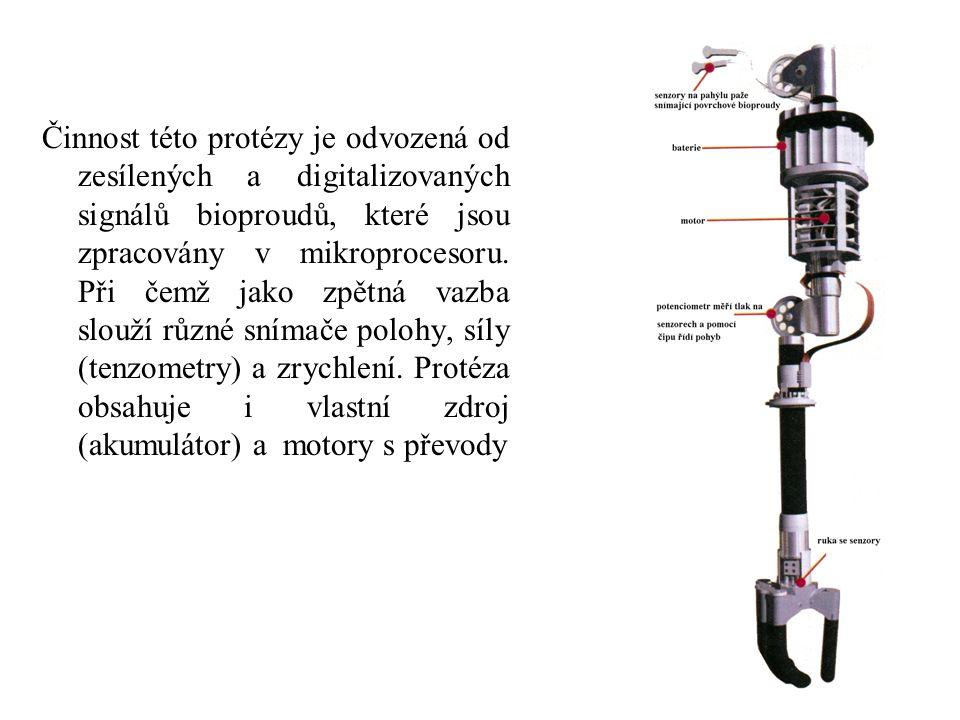 Činnost této protézy je odvozená od zesílených a digitalizovaných signálů bioproudů, které jsou zpracovány v mikroprocesoru.