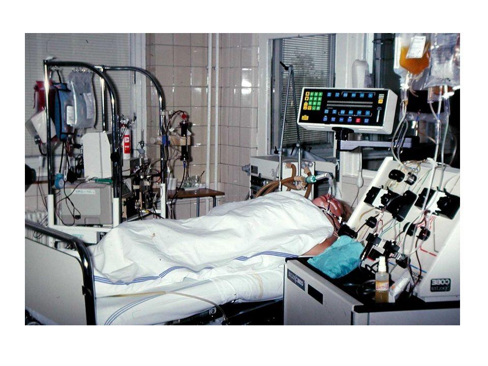 """Svalové podmínky vedoucí k """"frailty syndromu Rychlost pohybu Svalová hmota Sarkopenie Bez sarkopenie Síla stisku ruky pomalá  0,8 m/s nízká normální ≥ 0,8 m/s nízká SMI normální SMI Biolo, G., 2014"""