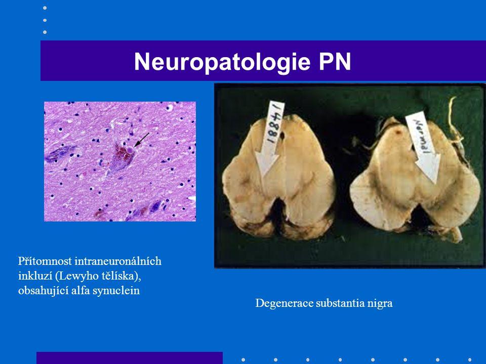 Neuropatologie PN Přítomnost intraneuronálních inkluzí (Lewyho tělíska), obsahující alfa synuclein Degenerace substantia nigra