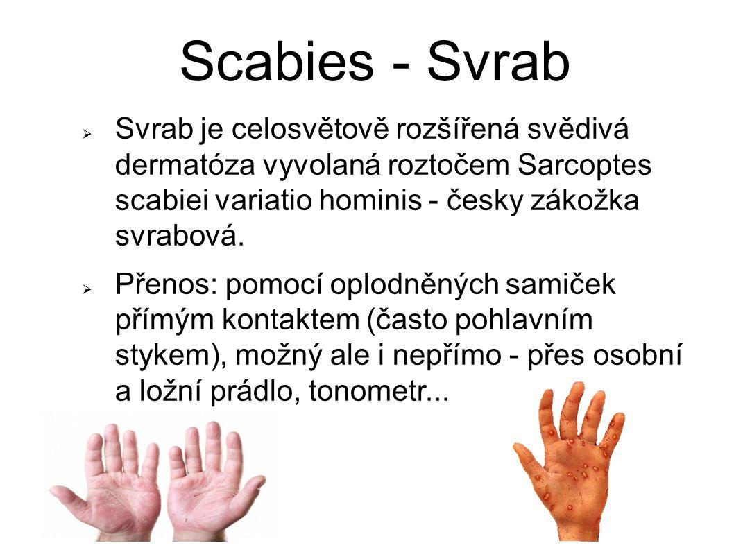 Scabies - Svrab  Svrab je celosvětově rozšířená svědivá dermatóza vyvolaná roztočem Sarcoptes scabiei variatio hominis - česky zákožka svrabová.