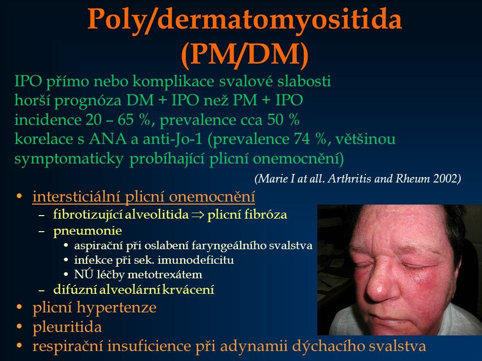 Poly/dermatomyositida (PM/DM) IPO přímo nebo komplikace svalové slabosti horší prognóza DM + IPO než PM + IPO incidence 20 – 65 %, prevalence cca 50 %