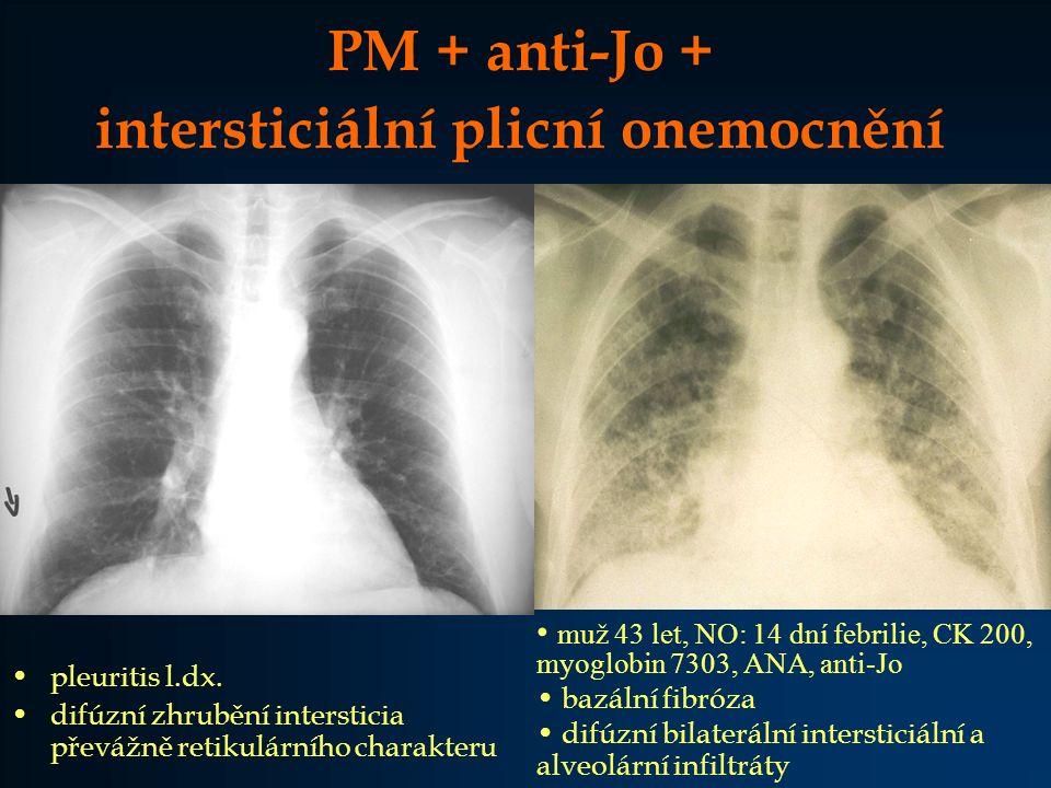 PM + anti-Jo + intersticiální plicní onemocnění muž 43 let, NO: 14 dní febrilie, CK 200, myoglobin 7303, ANA, anti-Jo bazální fibróza difúzní bilaterá