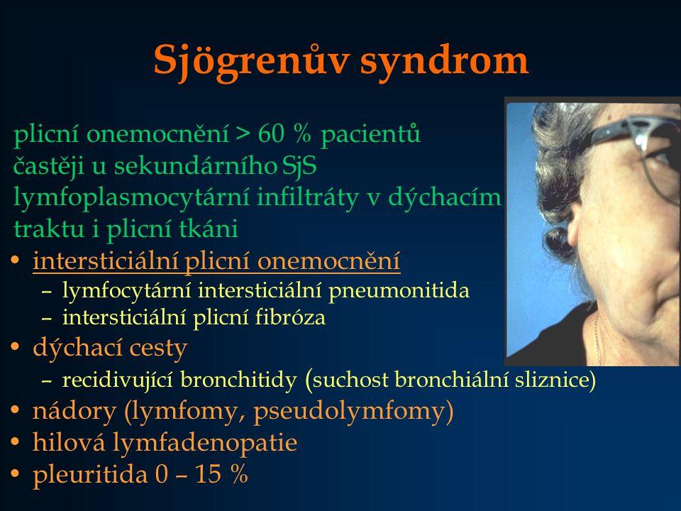 Sjögrenův syndrom plicní onemocnění > 60 % pacientů častěji u sekundárního SjS lymfoplasmocytární infiltráty v dýchacím traktu i plicní tkáni intersti