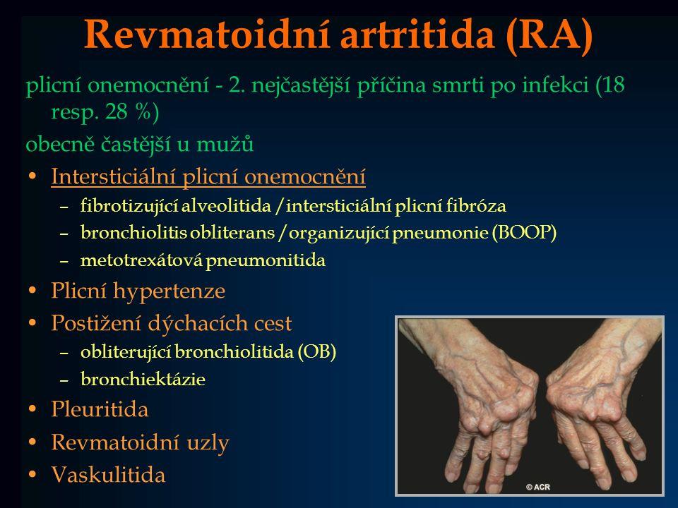 Revmatoidní artritida (RA) plicní onemocnění - 2. nejčastější příčina smrti po infekci (18 resp. 28 %) obecně častější u mužů Intersticiální plicní on