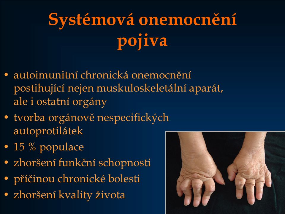 Systémová onemocnění pojiva autoimunitní chronická onemocnění postihující nejen muskuloskeletální aparát, ale i ostatní orgány tvorba orgánově nespeci