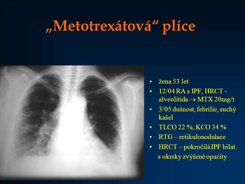 """""""Metotrexátová"""" plíce žena 53 let 12/04 RA s IPF, HRCT - alveolitida  MTX 20mg/t 3/05 dušnost, febrilie, suchý kašel TLCO 22 %, KCO 34 % RTG – retiku"""