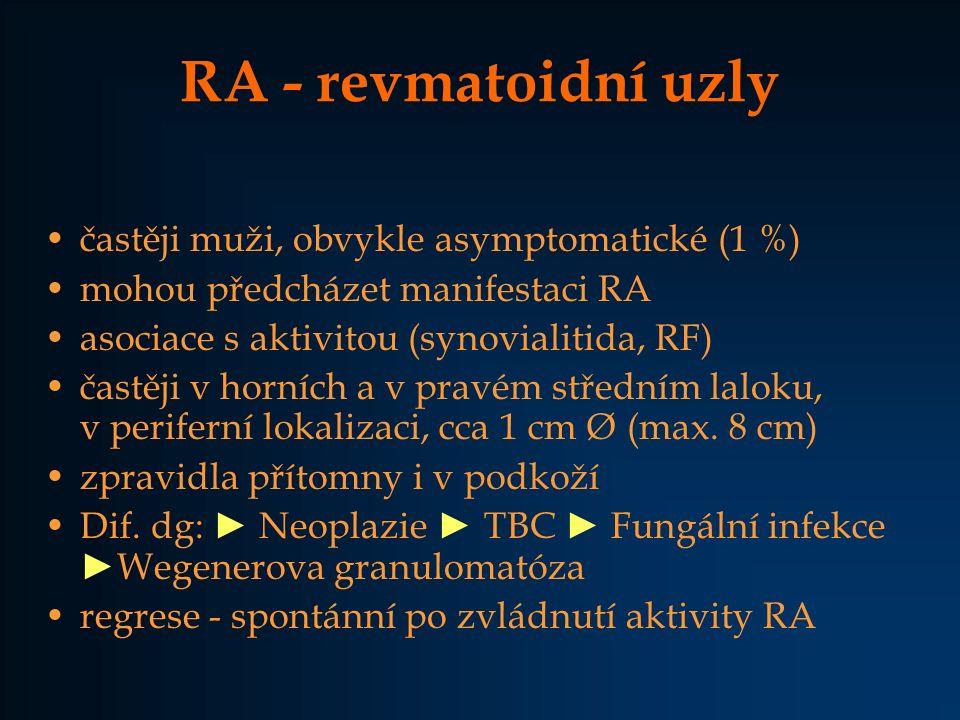 RA - revmatoidní uzly častěji muži, obvykle asymptomatické (1 %) mohou předcházet manifestaci RA asociace s aktivitou (synovialitida, RF) častěji v ho