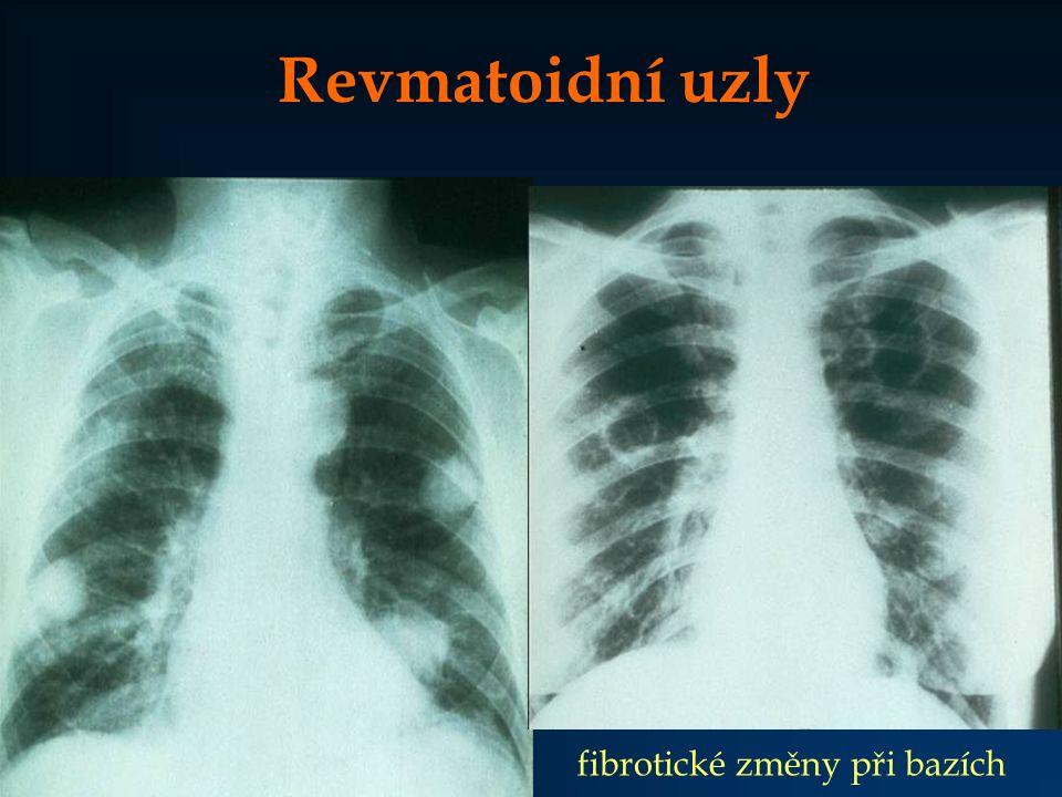 Revmatoidní uzly fibrotické změny při bazích