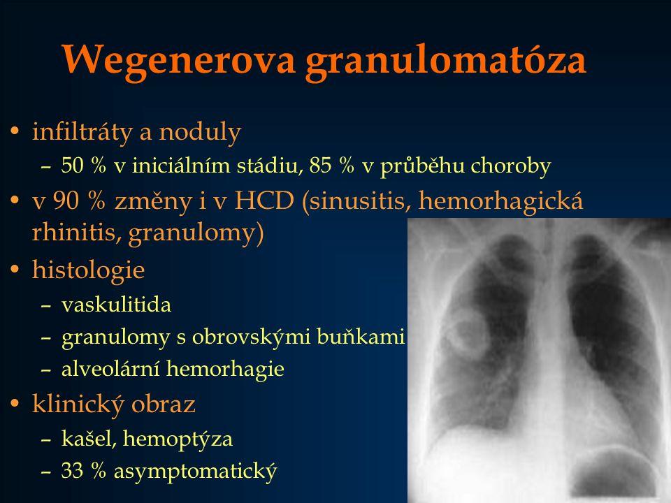 Wegenerova granulomatóza infiltráty a noduly –50 % v iniciálním stádiu, 85 % v průběhu choroby v 90 % změny i v HCD (sinusitis, hemorhagická rhinitis,