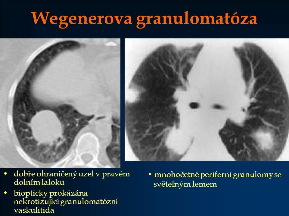 Wegenerova granulomatóza dobře ohraničený uzel v pravém dolním laloku biopticky prokázána nekrotizující granulomatózní vaskulitida mnohočetné perifern