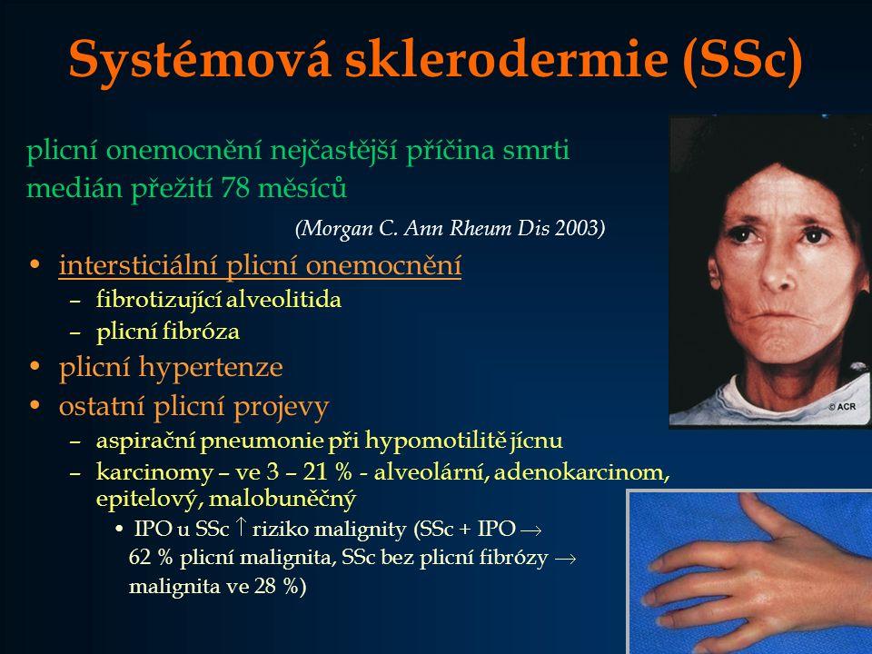 PM/DM - fibrotizující alveolitida / plicní fibróza 10 – 30 % pacientů až ve 40 % předchází vzniku myozitidy nebo kožních projevů není korelace mezi tíží svalového a kožního postižení a vývojem IPO –rychle progredující pneumonitida horečka, akutní dušnost, plicní infiltráty  respirační insuficience, fatální průběh –pomalu progredující dušnost abnormality na rtg hrudníku –asymptomaticky abnormální rtg a funkční vyšetření – redukce DLCO, FVC, TLC (Lamblin C at all.