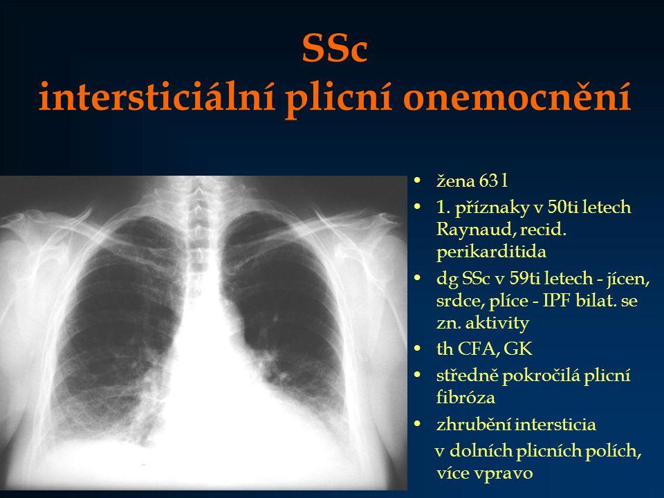 Sjögrenův syndrom plicní onemocnění > 60 % pacientů častěji u sekundárního SjS lymfoplasmocytární infiltráty v dýchacím traktu i plicní tkáni intersticiální plicní onemocnění –lymfocytární intersticiální pneumonitida –intersticiální plicní fibróza dýchací cesty –recidivující bronchitidy ( suchost bronchiální sliznice) nádory (lymfomy, pseudolymfomy) hilová lymfadenopatie pleuritida 0 – 15 %