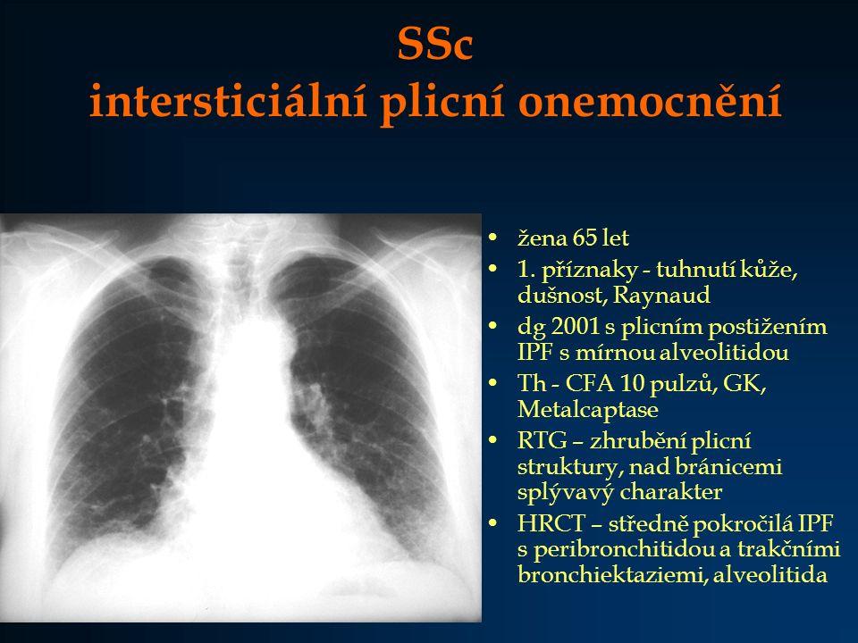 SSc intersticiální plicní onemocnění žena 65 let 1. příznaky - tuhnutí kůže, dušnost, Raynaud dg 2001 s plicním postižením IPF s mírnou alveolitidou T