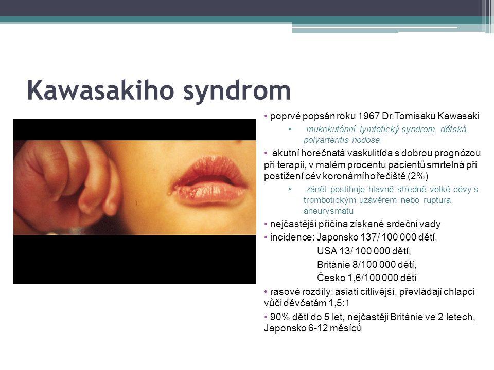 Kawasakiho syndrom poprvé popsán roku 1967 Dr.Tomisaku Kawasaki mukokutánní lymfatický syndrom, dětská polyarteritis nodosa akutní horečnatá vaskulitída s dobrou prognózou při terapii, v malém procentu pacientů smrtelná při postižení cév koronárního řečiště (2%) zánět postihuje hlavně středně velké cévy s trombotickým uzávěrem nebo ruptura aneurysmatu nejčastější příčina získané srdeční vady incidence: Japonsko 137/ 100 000 dětí, USA 13/ 100 000 dětí, Británie 8/100 000 dětí, Česko 1,6/100 000 dětí rasové rozdíly: asiati citlivější, převládají chlapci vůči děvčatám 1,5:1 90% dětí do 5 let, nejčastěji Británie ve 2 letech, Japonsko 6-12 měsíců
