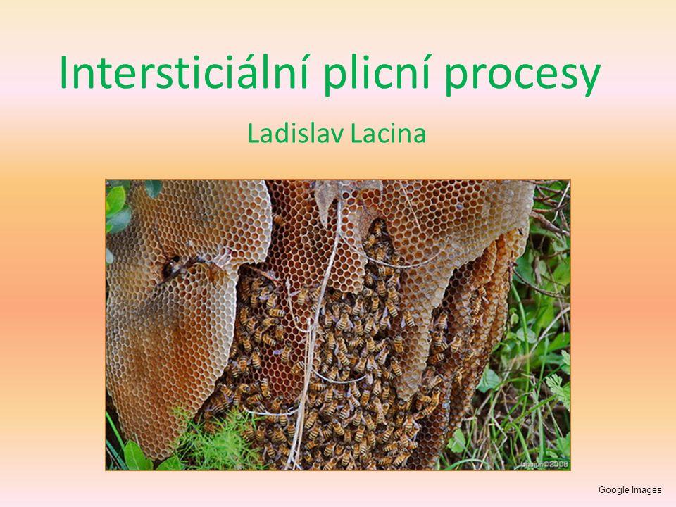 Intersticiální plicní procesy Ladislav Lacina Google Images
