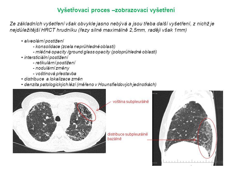 Vyšetřovací proces –zobrazovací vyšetření Ze základních vyšetření však obvykle jasno nebývá a jsou třeba další vyšetření, z nichž je nejdůležitější HRCT hrudníku (řezy silné maximálně 2,5mm, raději však 1mm) alveolární postižení - konsolidace (zcela neprůhledné oblasti) - mléčné opacity /ground glass opacity (poloprůhledné oblasti) intersticiální postižení - retikulární postižení - nodulární změny - voštinová přestavba distribuce a lokalizace změn denzita patologických lézí (měřeno v Hounsfieldových jednotkách) voština subpleurálně distribuce subpleurálně bazálně
