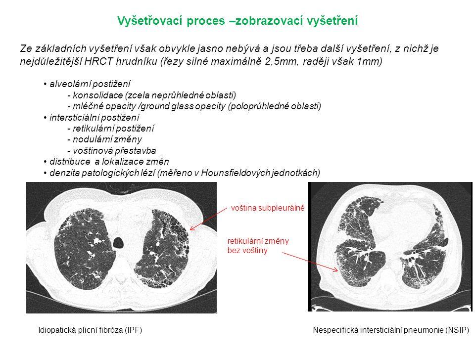 Vyšetřovací proces –zobrazovací vyšetření Ze základních vyšetření však obvykle jasno nebývá a jsou třeba další vyšetření, z nichž je nejdůležitější HRCT hrudníku (řezy silné maximálně 2,5mm, raději však 1mm) alveolární postižení - konsolidace (zcela neprůhledné oblasti) - mléčné opacity /ground glass opacity (poloprůhledné oblasti) intersticiální postižení - retikulární postižení - nodulární změny - voštinová přestavba distribuce a lokalizace změn denzita patologických lézí (měřeno v Hounsfieldových jednotkách) voština subpleurálně retikulární změny bez voštiny Idiopatická plicní fibróza (IPF)Nespecifická intersticiální pneumonie (NSIP)