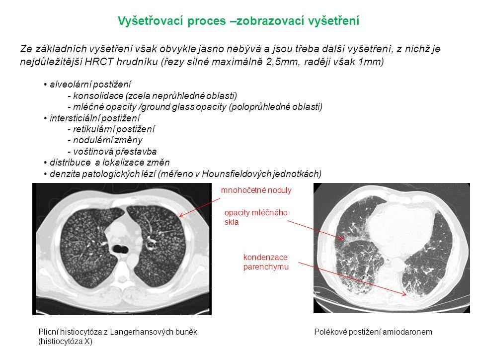 Vyšetřovací proces –zobrazovací vyšetření Ze základních vyšetření však obvykle jasno nebývá a jsou třeba další vyšetření, z nichž je nejdůležitější HRCT hrudníku (řezy silné maximálně 2,5mm, raději však 1mm) alveolární postižení - konsolidace (zcela neprůhledné oblasti) - mléčné opacity /ground glass opacity (poloprůhledné oblasti) intersticiální postižení - retikulární postižení - nodulární změny - voštinová přestavba distribuce a lokalizace změn denzita patologických lézí (měřeno v Hounsfieldových jednotkách) mnohočetné noduly opacity mléčného skla Plicní histiocytóza z Langerhansových buněk (histiocytóza X) Polékové postižení amiodaronem kondenzace parenchymu