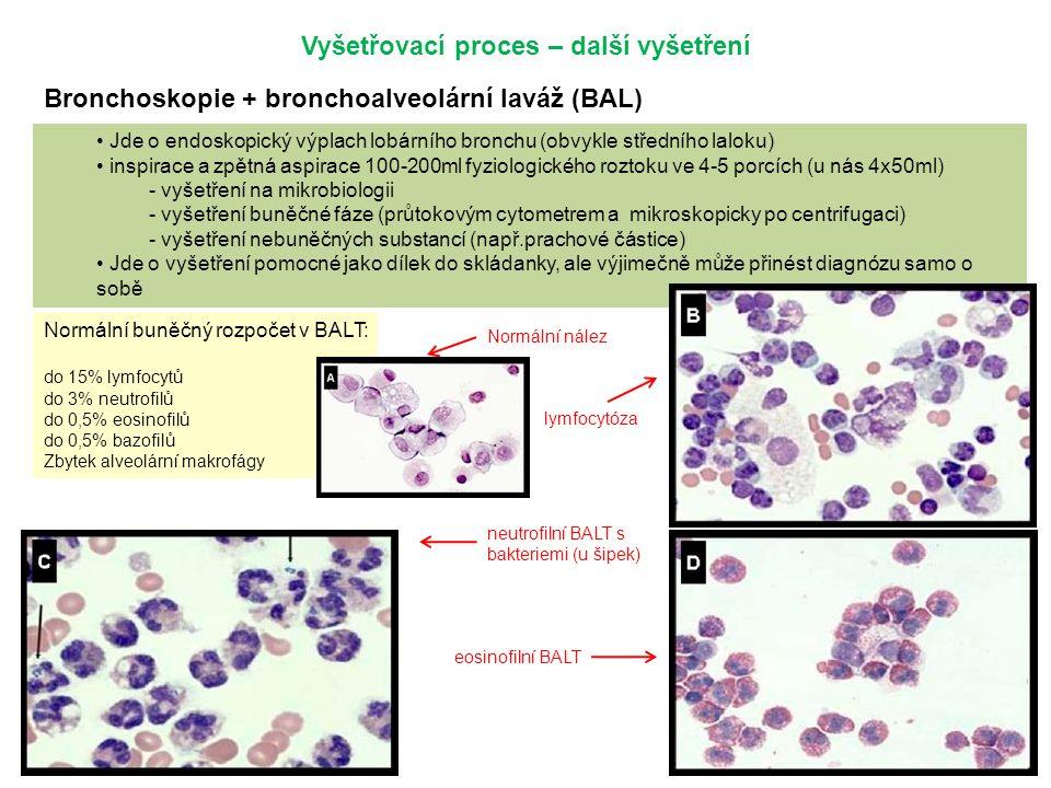 Vyšetřovací proces – další vyšetření Bronchoskopie + bronchoalveolární laváž (BAL) Jde o endoskopický výplach lobárního bronchu (obvykle středního laloku) inspirace a zpětná aspirace 100-200ml fyziologického roztoku ve 4-5 porcích (u nás 4x50ml) - vyšetření na mikrobiologii - vyšetření buněčné fáze (průtokovým cytometrem a mikroskopicky po centrifugaci) - vyšetření nebuněčných substancí (např.prachové částice) Jde o vyšetření pomocné jako dílek do skládanky, ale výjimečně může přinést diagnózu samo o sobě Normální buněčný rozpočet v BALT: do 15% lymfocytů do 3% neutrofilů do 0,5% eosinofilů do 0,5% bazofilů Zbytek alveolární makrofágy lymfocytóza neutrofilní BALT s bakteriemi (u šipek) eosinofilní BALT Normální nález
