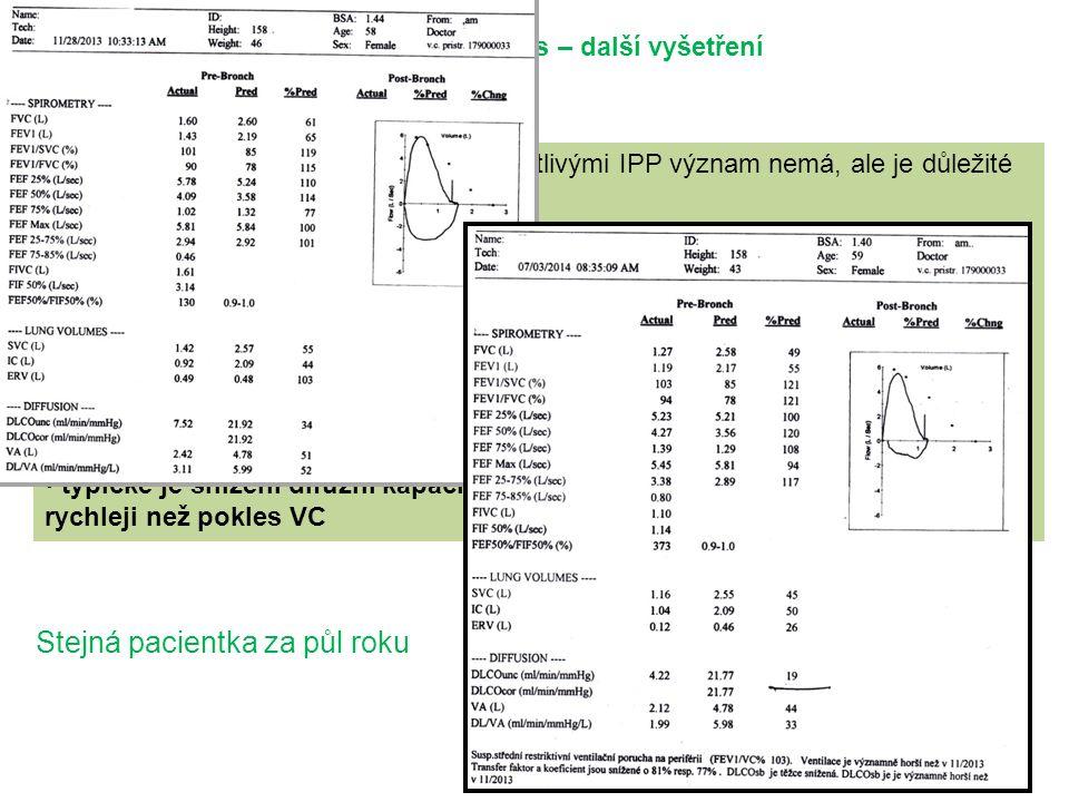Vyšetřovací proces – další vyšetření Funkční vyšetření pro diferenciální diagnostiku mezi jednotlivými IPP význam nemá, ale je důležité pro monitorování onemocnění má význam jako kritérium při zvažování transplantace plic pro intersticiální plicní procesy je typická restrikční ventilační porucha (↓VC, ↓TLC) FEV1 bývá v normě a FEV1/FVC v normě nebo zvýšené typické je snížení difuzní kapacity plic, které se obvykle rozvíjí dříve a rychleji než pokles VC Stejná pacientka za půl roku