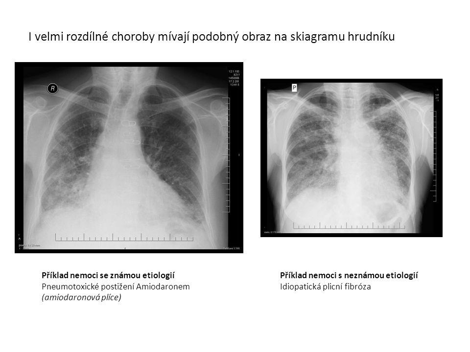 I velmi rozdílné choroby mívají podobný obraz na skiagramu hrudníku Příklad nemoci se známou etiologií Pneumotoxické postižení Amiodaronem (amiodaronová plíce) Příklad nemoci s neznámou etiologií Idiopatická plicní fibróza