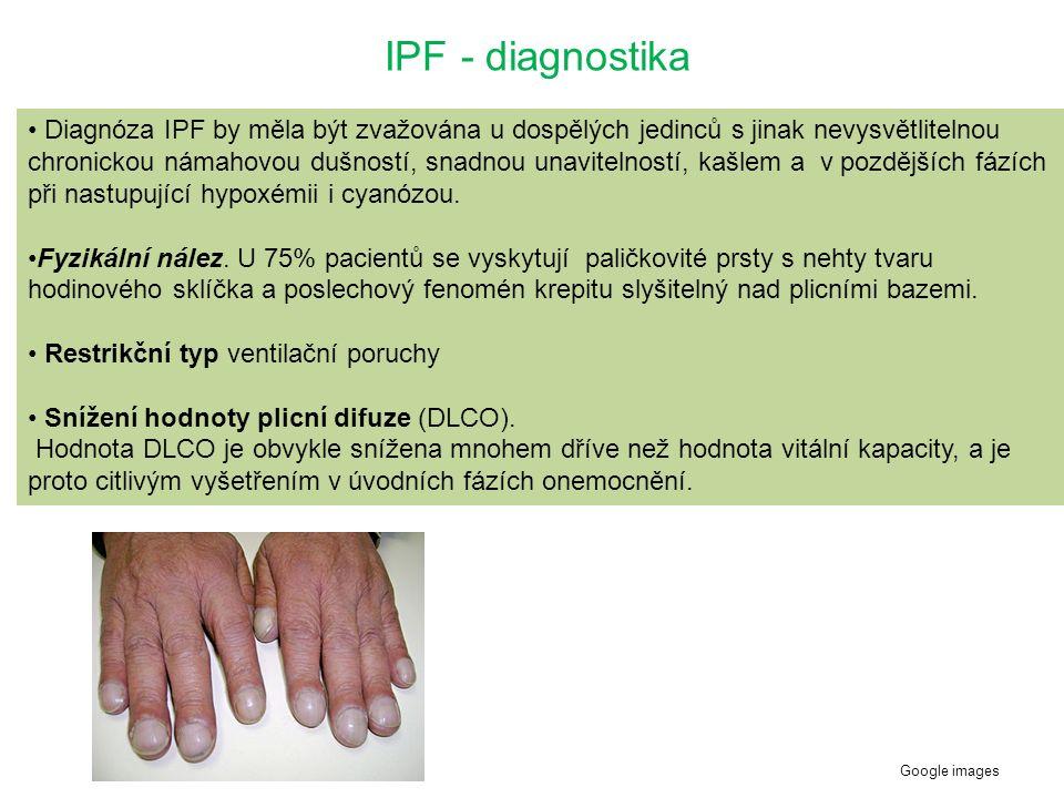 IPF - diagnostika Diagnóza IPF by měla být zvažována u dospělých jedinců s jinak nevysvětlitelnou chronickou námahovou dušností, snadnou unavitelností, kašlem a v pozdějších fázích při nastupující hypoxémii i cyanózou.