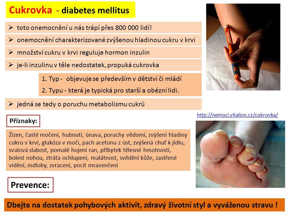  toto onemocnění u nás trápí přes 800 000 lidí! Cukrovka - diabetes mellitus  onemocnění charakterizované zvýšenou hladinou cukru v krvi  množství