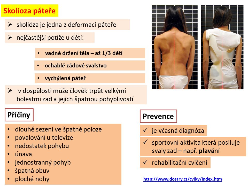  skolióza je jedna z deformací páteře Skolioza páteře ochablé zádové svalstvo  v dospělosti může člověk trpět velkými bolestmi zad a jejich špatnou pohyblivostí http://www.dostry.cz/cviky/index.htm vadné držení těla – až 1/3 dětí vychýlená páteř Příčiny dlouhé sezení ve špatné poloze povalování u televize nedostatek pohybu únava jednostranný pohyb špatná obuv ploché nohy Prevence je včasná diagnóza sportovní aktivita která posiluje svaly zad – např.