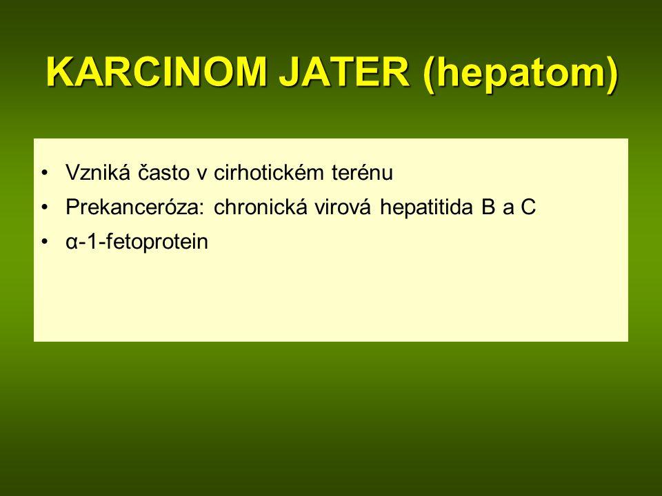KARCINOM JATER (hepatom) Vzniká často v cirhotickém terénu Prekanceróza: chronická virová hepatitida B a C α-1-fetoprotein
