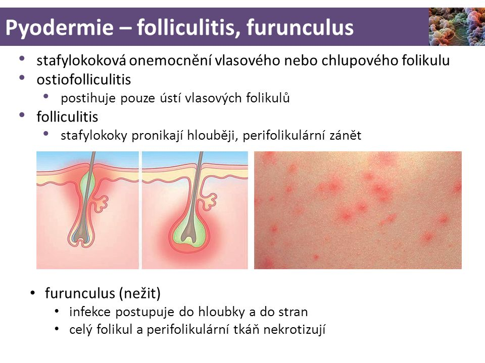 Pyodermie – folliculitis, furunculus stafylokoková onemocnění vlasového nebo chlupového folikulu ostiofolliculitis postihuje pouze ústí vlasových folikulů folliculitis stafylokoky pronikají hlouběji, perifolikulární zánět furunculus (nežit) infekce postupuje do hloubky a do stran celý folikul a perifolikulární tkáň nekrotizují