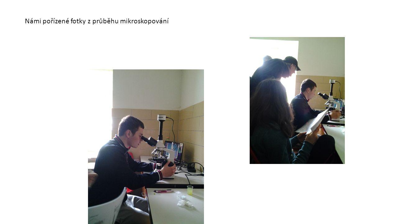 Námi pořízené fotky z průběhu mikroskopování