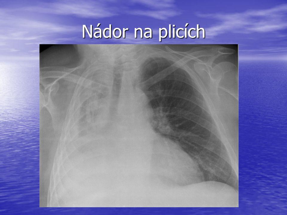 Nádor na plicích