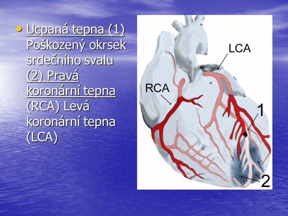 Ucpaná tepna (1) Poškozený okrsek srdečního svalu (2) Pravá koronární tepna (RCA) Levá koronární tepna (LCA) Ucpaná tepna (1) Poškozený okrsek srdečního svalu (2) Pravá koronární tepna (RCA) Levá koronární tepna (LCA)